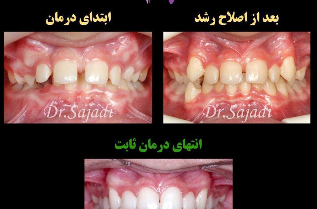 WhatsApp Image 2020 09 06 at 14.21.27 1 1024x675 - درمان اصلاح رشد و سپس ارتودنسی ثابت در بیماری با مشکل اسکلتی