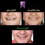 WhatsApp Image 2020 09 06 at 14.21.27 150x150 - درمان اصلاح رشد و سپس ارتودنسی ثابت در بیماری با مشکل اسکلتی