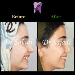 WhatsApp Image 2020 09 08 at 10.33.12 150x150 - ارتودنسی ثابت بدون کشیدن دندان