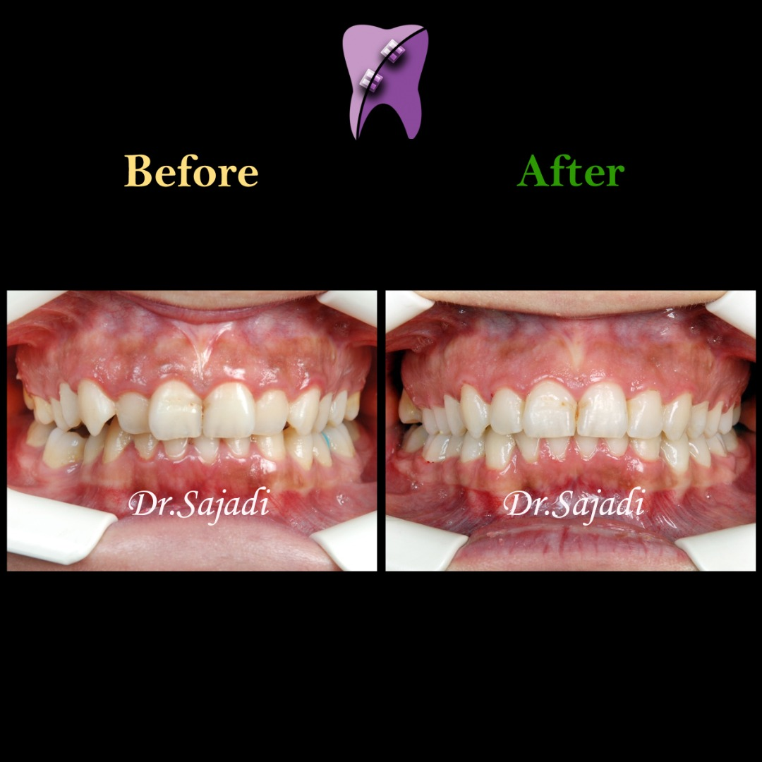 WhatsApp Image 2020 09 08 at 10.33.13 1 - ارتودنسی ثابت بدون کشیدن دندان