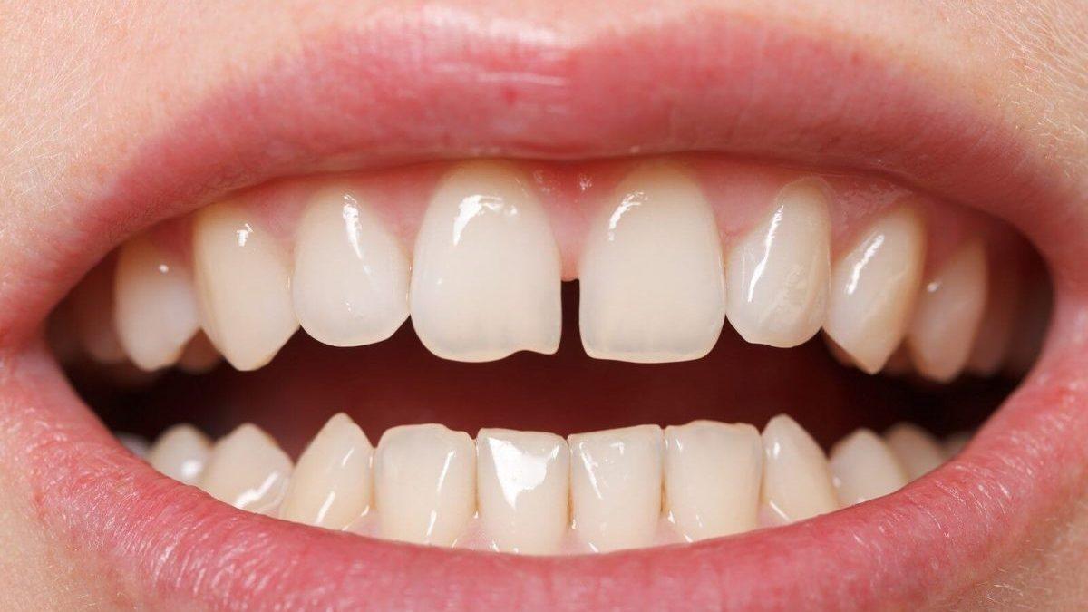 38 1200x675 - دیاستم یا فاصله بین دندان ها