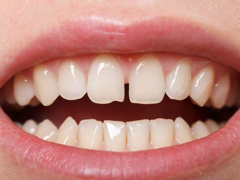 38 960x720 - دیاستم یا فاصله بین دندان ها