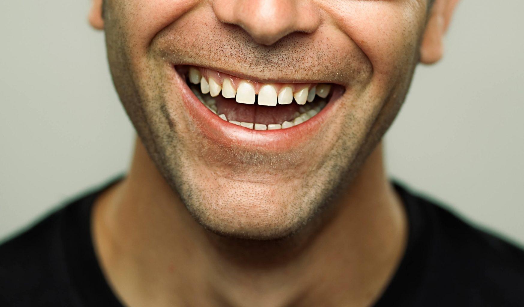 دیاستم و فاصله بین دندانی