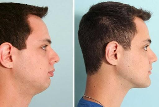 تأثیر ارتودنسی روی چهره