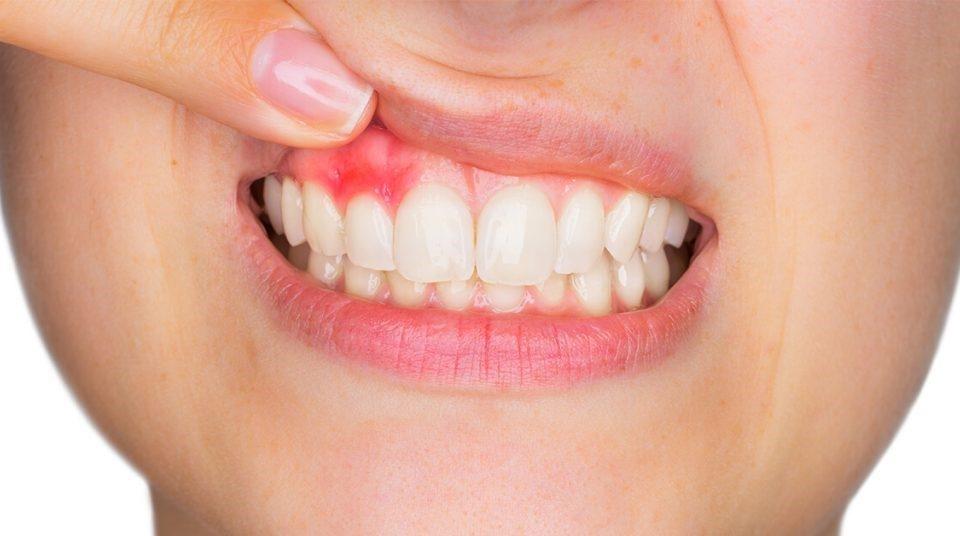 16 960x536 - درمان زخم دهان ناشی از براکت ارتودنسی