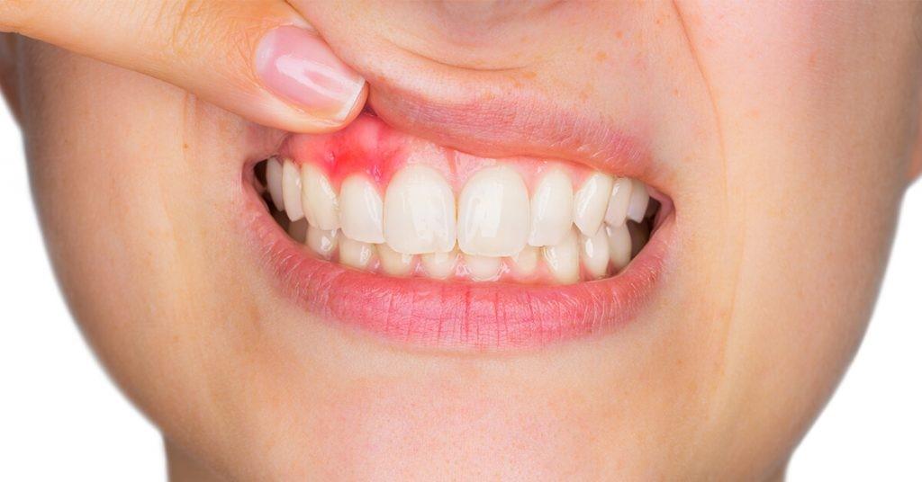 16 - درمان زخم دهان ناشی از براکت ارتودنسی