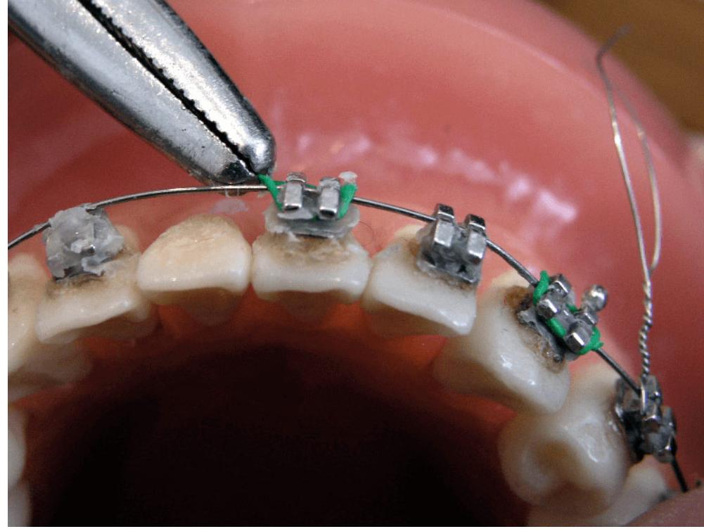 زخم دهان ناشی از براکت ارتودنسی