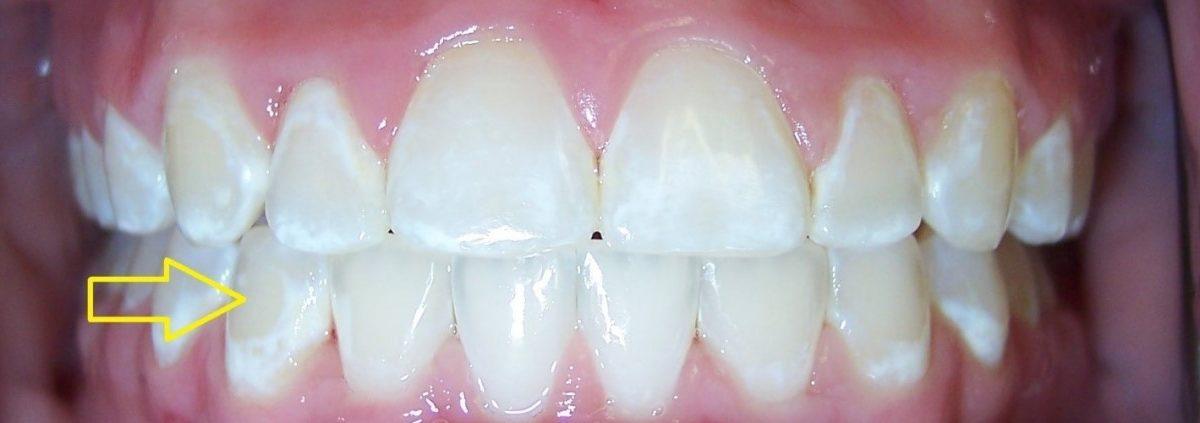 4 1 1200x423 - آیا براکت ارتودنسی دندانها را لک میکند؟