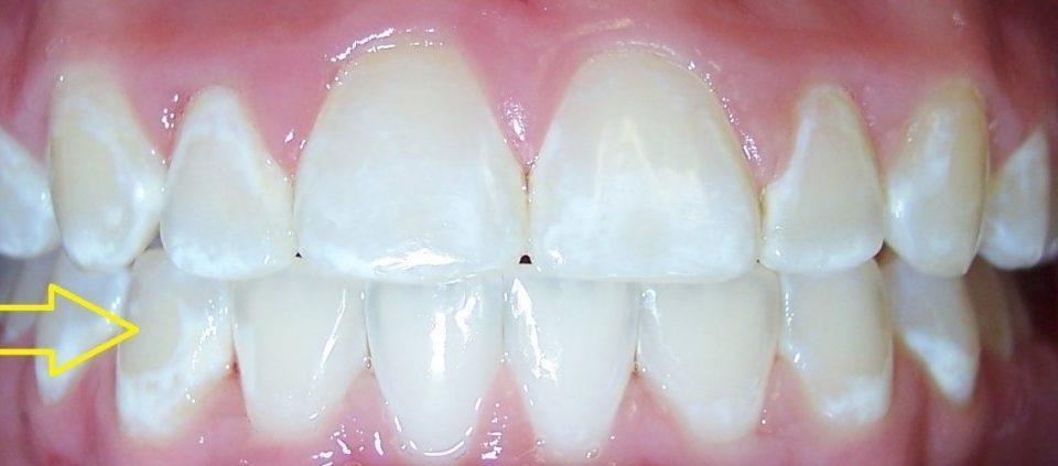 4 1 960x423 - آیا براکت ارتودنسی دندانها را لک میکند؟