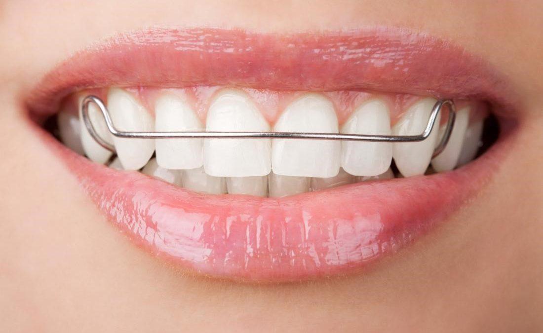 4 1100x675 - درمان دندان نهفته با ارتودنسی