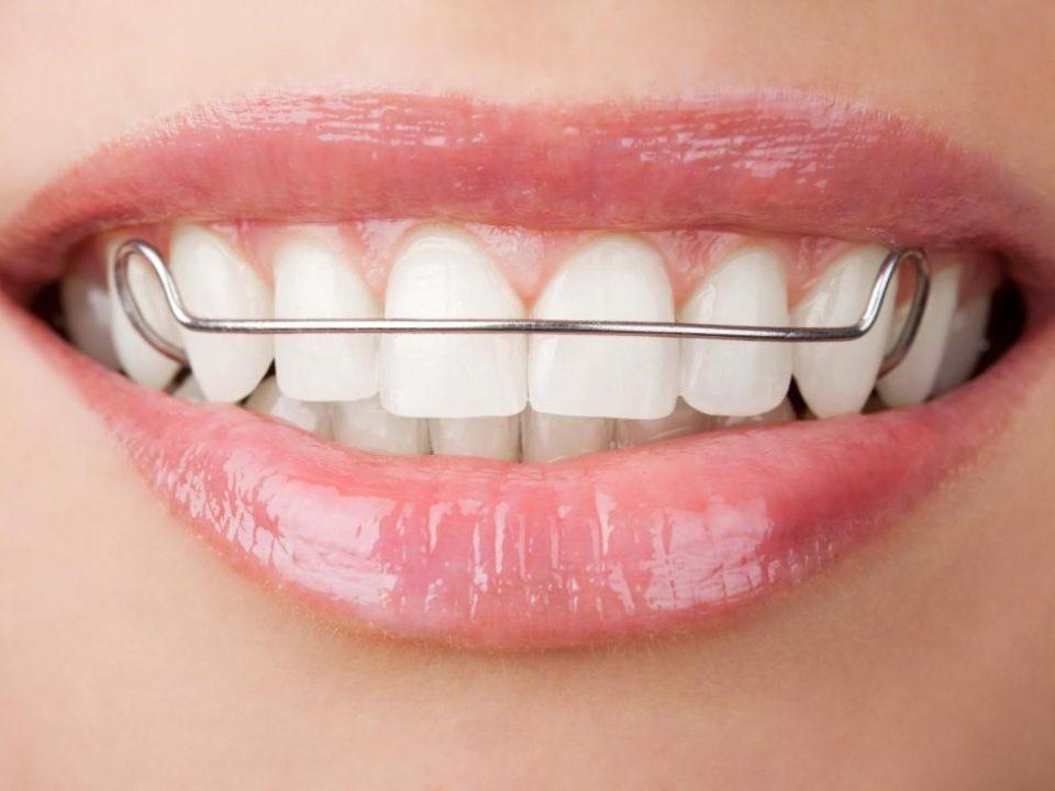 4 960x720 - درمان دندان نهفته با ارتودنسی