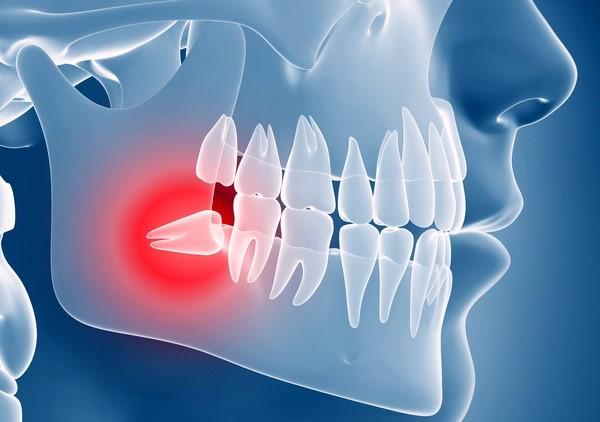 درمان دندان نهفته با ارتودنسی
