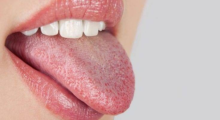 18 - درمان خشکی دهان در طی درمان ارتودنسی