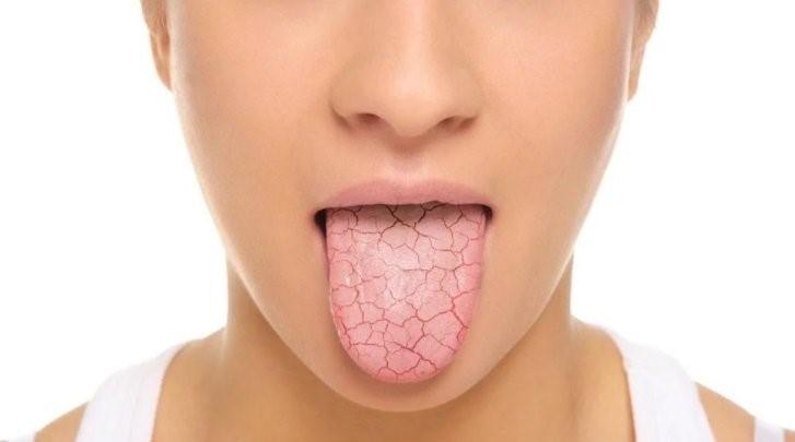 خشکی دهان در درمان ارتودنسی