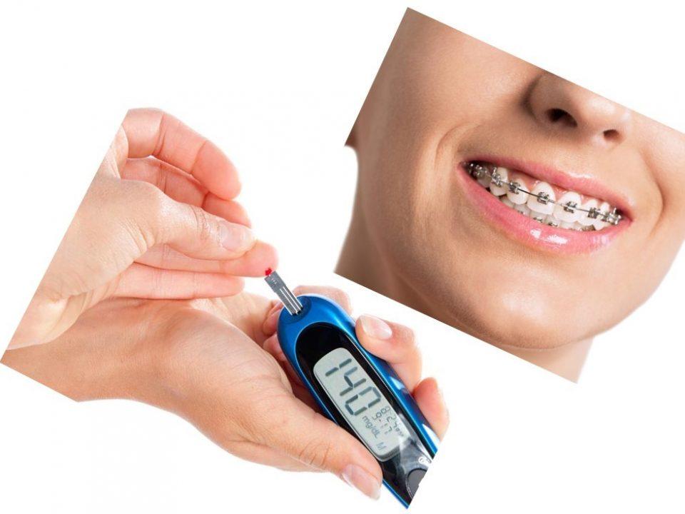 7 1 960x720 - اثرات دیابت در طول درمان ارتودنسی