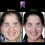 WhatsApp Image 2021 02 15 at 14.35.35 150x150 - درمان ارتودنسی ثابت در بیماری با سابقه ضربه به دندان های جلو