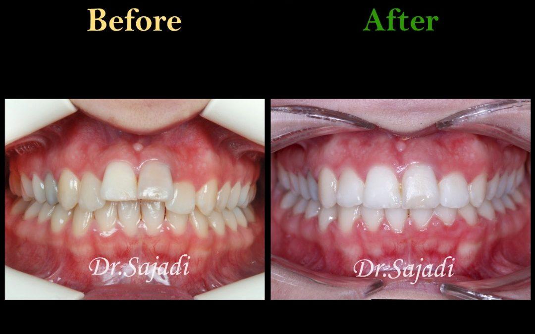 WhatsApp Image 2021 02 15 at 14.35.35 2 1080x675 - درمان ارتودنسی ثابت در بیماری با سابقه ضربه به دندان های جلو