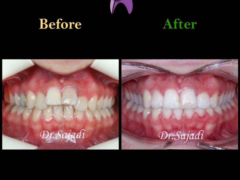 WhatsApp Image 2021 02 15 at 14.35.35 2 960x720 - درمان ارتودنسی ثابت در بیماری با سابقه ضربه به دندان های جلو