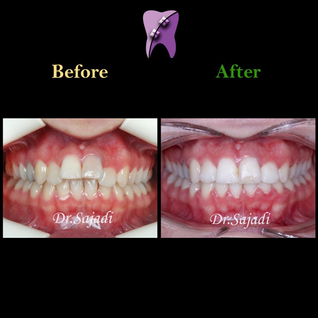 WhatsApp Image 2021 02 15 at 14.35.35 2 - درمان ارتودنسی ثابت در بیماری با سابقه ضربه به دندان های جلو