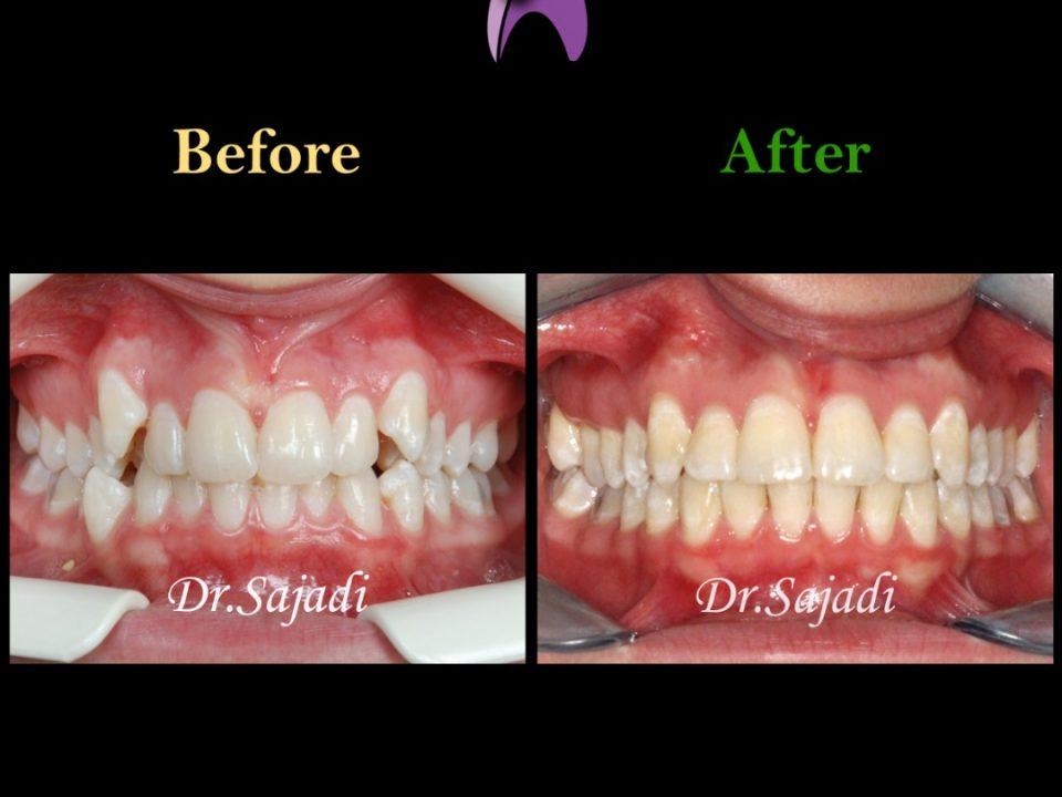 WhatsApp Image 2021 02 15 at 14.40.40 960x720 - درمان ارتودنسی ثابت دو فک بدون کشیدن دندان برای تامین زیبایی لب