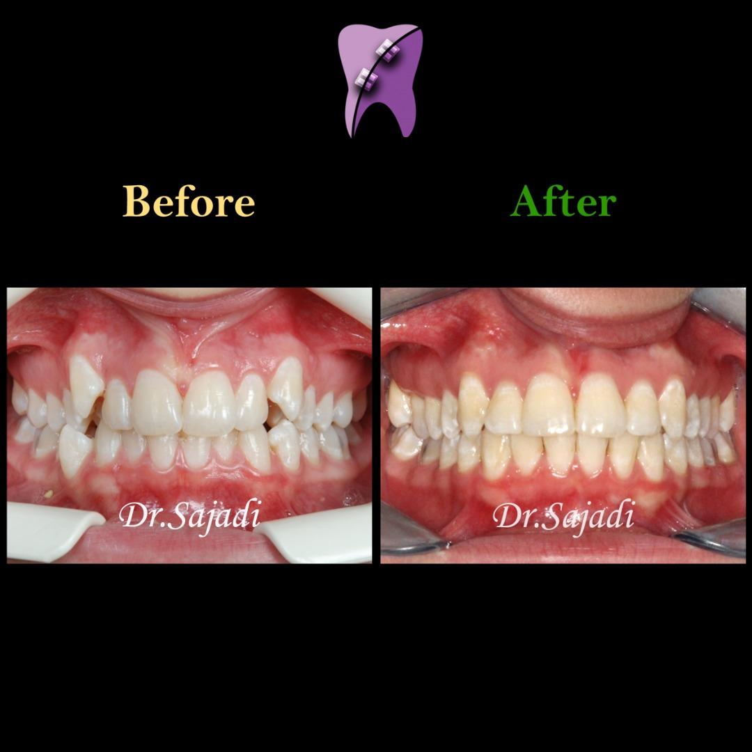 WhatsApp Image 2021 02 15 at 14.40.40 - درمان ارتودنسی ثابت دو فک بدون کشیدن دندان برای تامین زیبایی لب