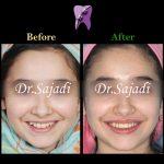 photo 2021 03 15 12 37 09 150x150 - ارتودنسی ثابت دو فک بدون کشیدن دندان برای اصلاح لبخند