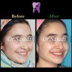 photo 2021 03 15 12 37 13 150x150 - ارتودنسی ثابت دو فک بدون کشیدن دندان برای اصلاح لبخند