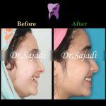 photo 2021 03 15 12 37 16 150x150 - ارتودنسی ثابت دو فک بدون کشیدن دندان برای اصلاح لبخند