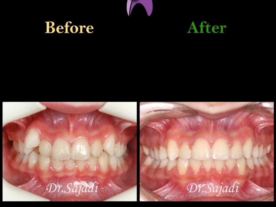 photo 2021 03 15 12 37 20 960x720 - ارتودنسی ثابت دو فک بدون کشیدن دندان برای اصلاح لبخند
