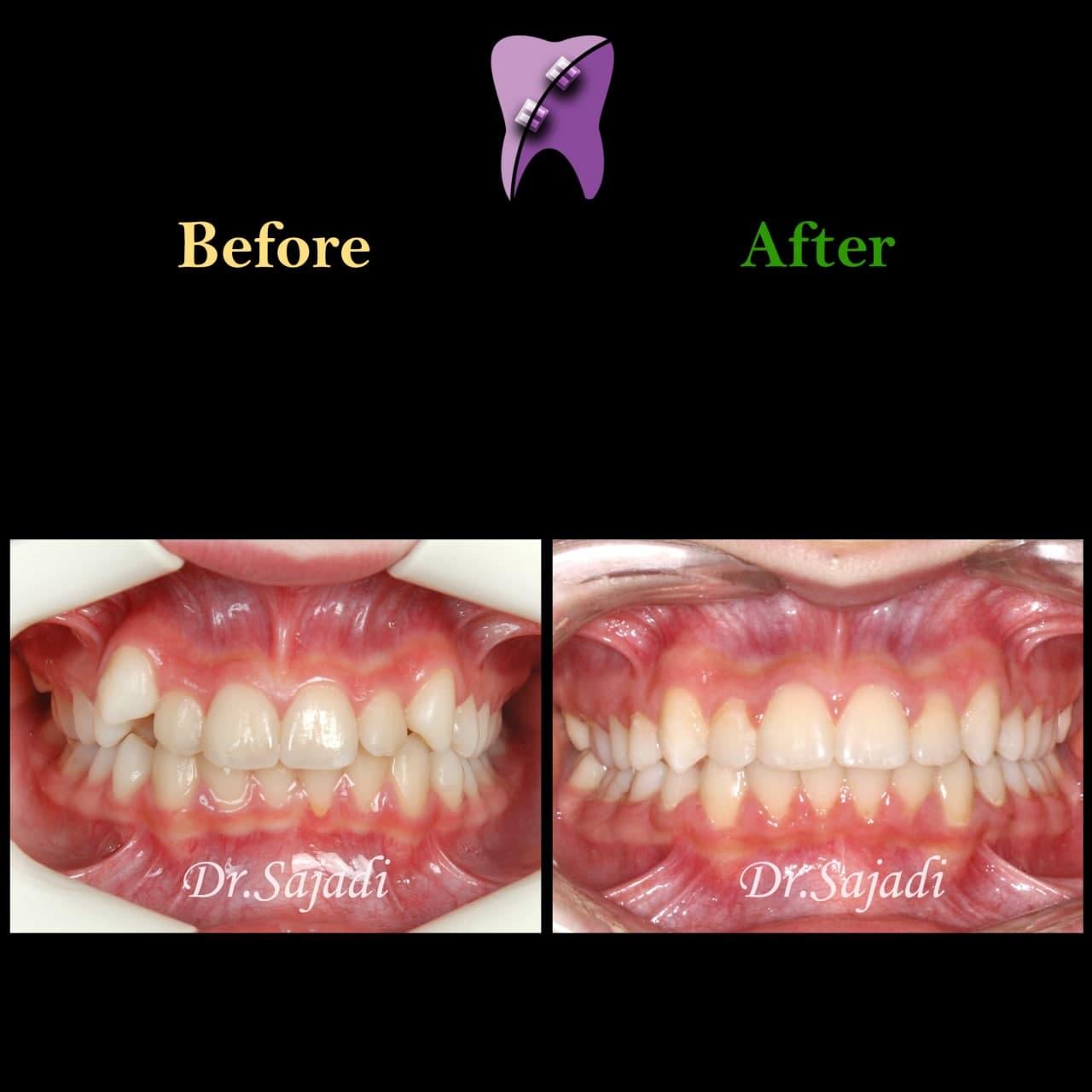 photo 2021 03 15 12 37 20 - ارتودنسی ثابت دو فک بدون کشیدن دندان برای اصلاح لبخند