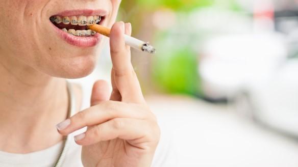 4 - تاثیر سیگار کشیدن بر ارتودنسی