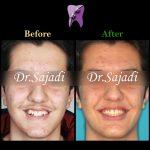 photo 2021 02 08 14 28 14 150x150 - ارتودنسی ثابت دو فک برای اصلاح جفت شدن دندان ها/درمان اپن بایت طرفی