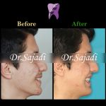 photo 2021 02 08 14 28 18 150x150 - ارتودنسی ثابت دو فک برای اصلاح جفت شدن دندان ها/درمان اپن بایت طرفی
