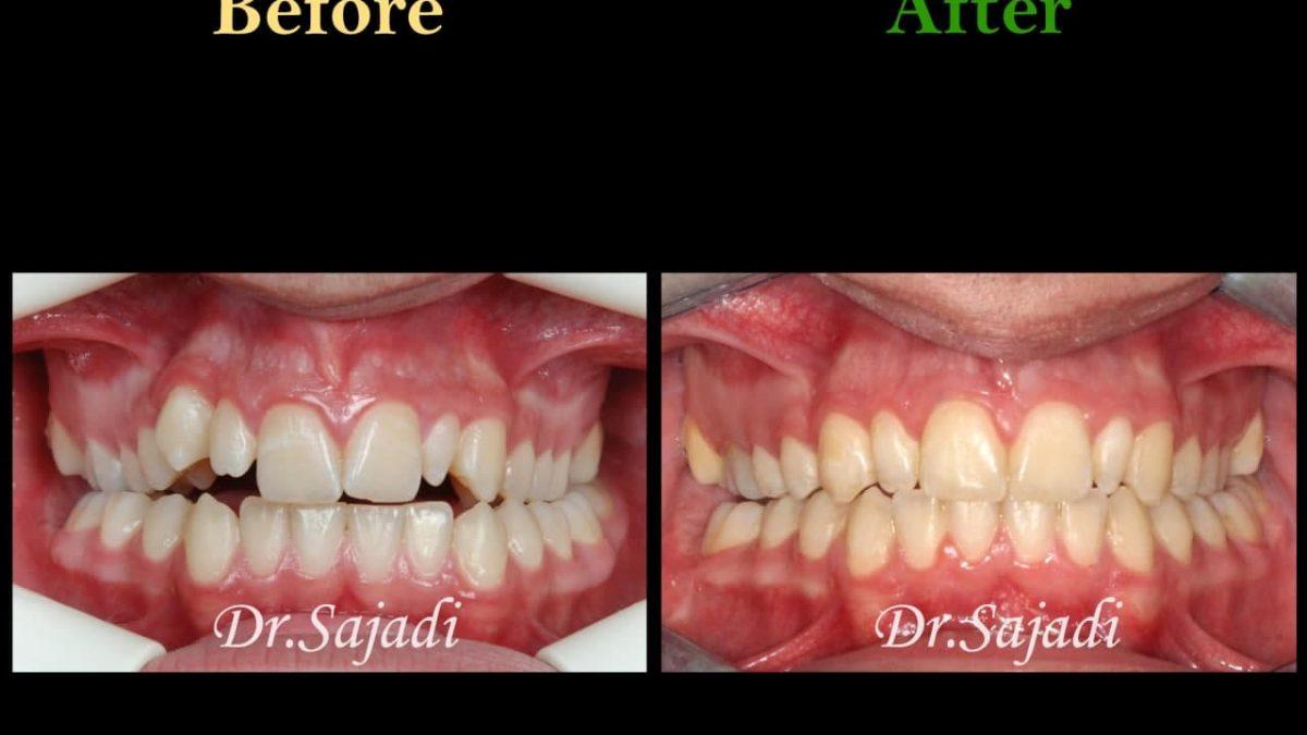 photo 2021 02 08 14 28 20 1200x675 - ارتودنسی ثابت دو فک برای اصلاح جفت شدن دندان ها/درمان اپن بایت طرفی