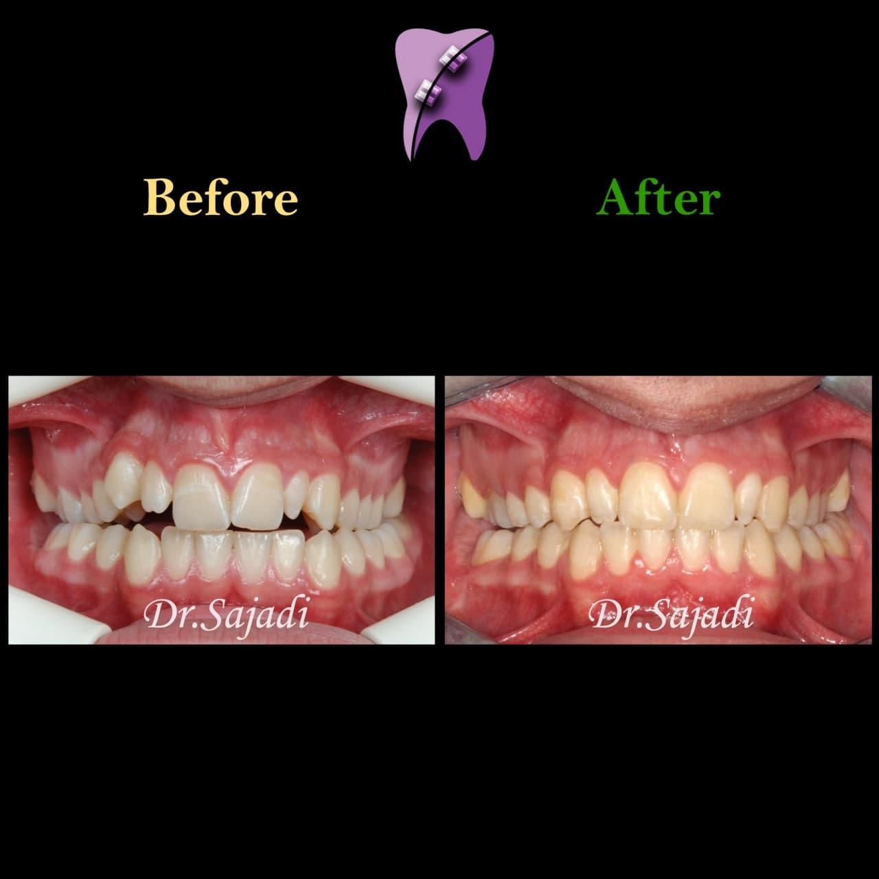 photo 2021 02 08 14 28 20 - ارتودنسی ثابت دو فک برای اصلاح جفت شدن دندان ها/درمان اپن بایت طرفی