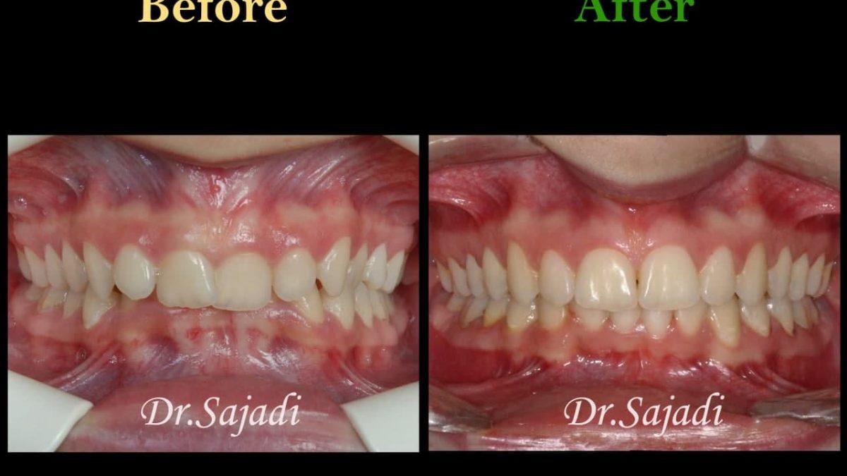 photo 2021 04 21 11 11 41 1200x675 - درمان دیپ بایت با ارتودنسی ثابت و بدون کشیدن دندان