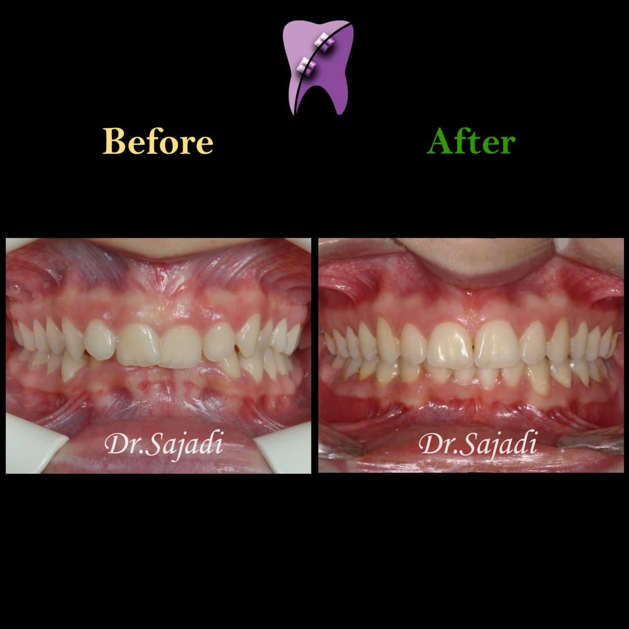 photo 2021 04 21 11 11 41 - درمان دیپ بایت با ارتودنسی ثابت و بدون کشیدن دندان