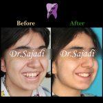 photo 2021 04 24 09 35 16 150x150 - درمان اپن بایت و بی نظمی شدید دندانی با ارتودنسی ثابت دو فک با کشیدن دندان