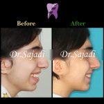 photo 2021 04 24 09 35 20 150x150 - درمان اپن بایت و بی نظمی شدید دندانی با ارتودنسی ثابت دو فک با کشیدن دندان