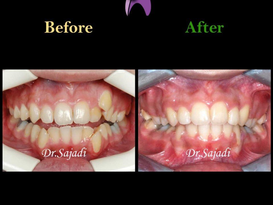 photo 2021 04 24 09 35 23 960x720 - درمان اپن بایت و بی نظمی شدید دندانی با ارتودنسی ثابت دو فک با کشیدن دندان
