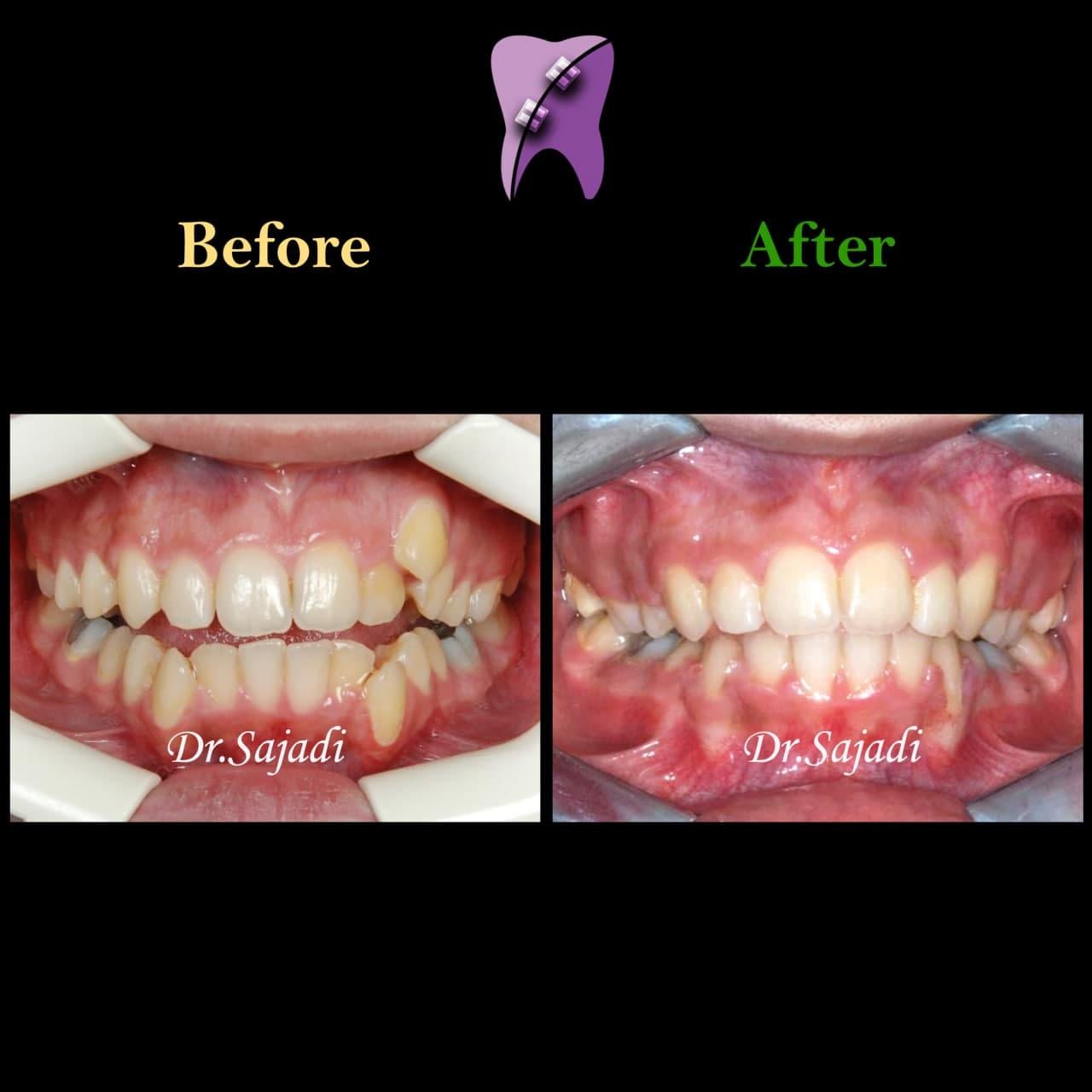 photo 2021 04 24 09 35 23 - درمان اپن بایت و بی نظمی شدید دندانی با ارتودنسی ثابت دو فک با کشیدن دندان