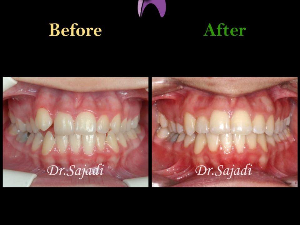 photo 2021 04 28 08 17 13 960x720 - ارتودنسی ثابت دو فک با کشیدن یک دندان آسیای کوچک