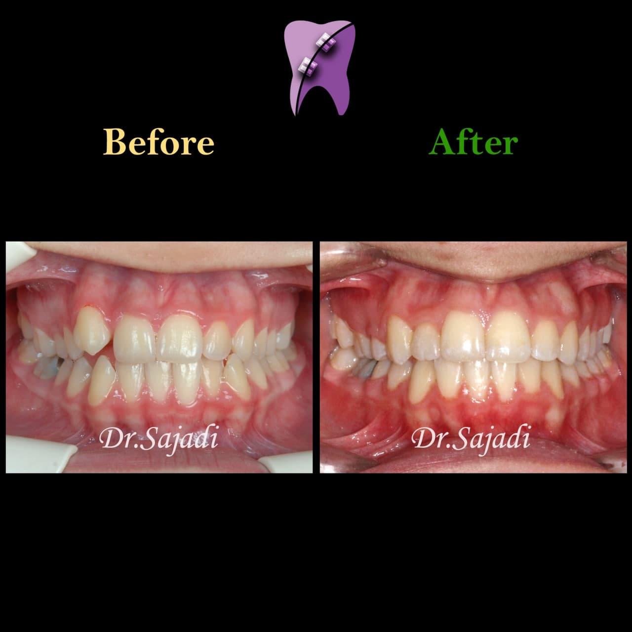 photo 2021 04 28 08 17 13 - ارتودنسی ثابت دو فک با کشیدن یک دندان آسیای کوچک