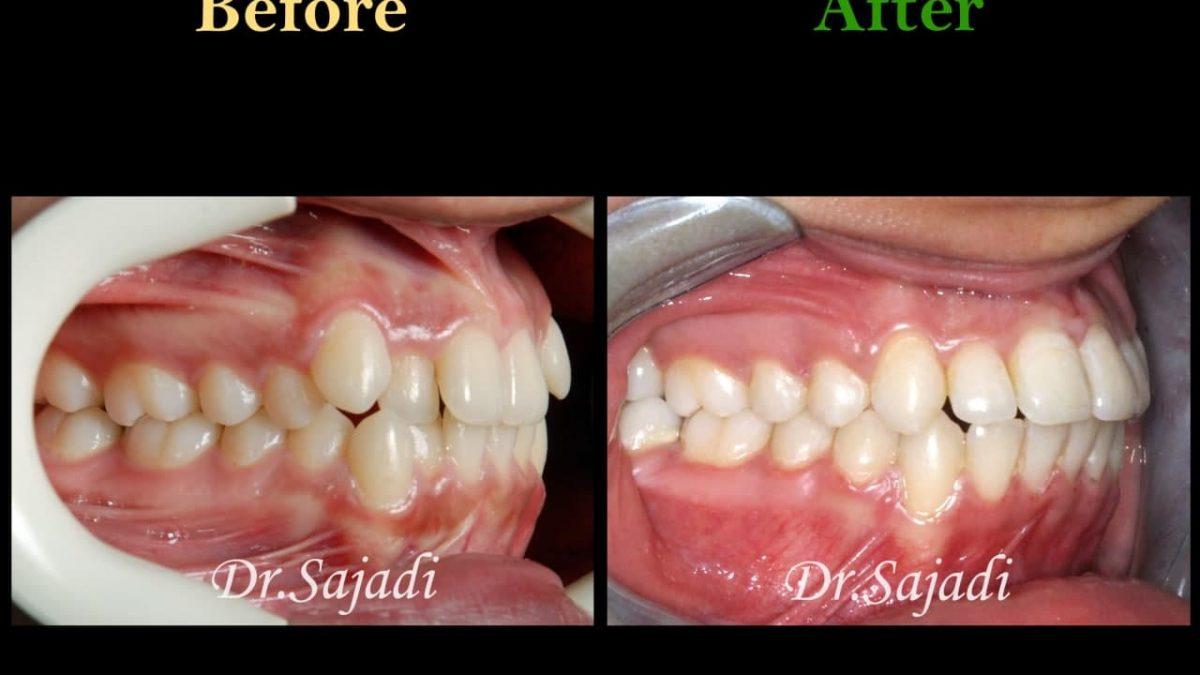 photo 2021 04 28 08 22 15 1200x675 - ارتودنسی ثابت دو فک بدون کشیدن دندان