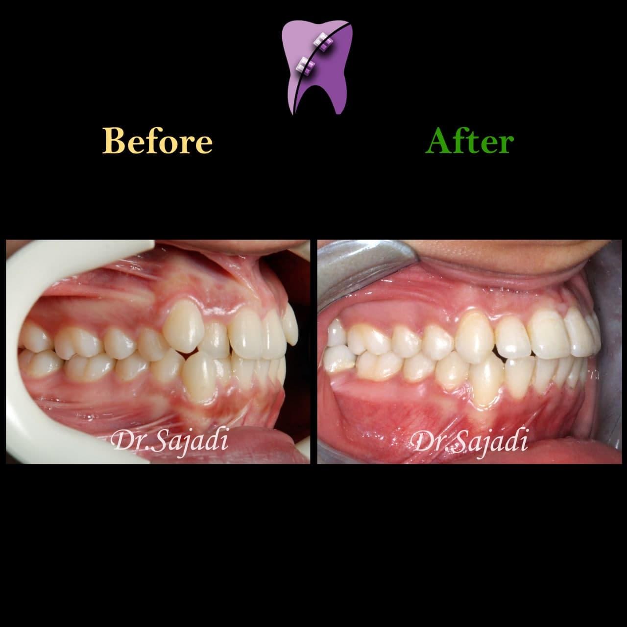 photo 2021 04 28 08 22 15 - ارتودنسی ثابت دو فک بدون کشیدن دندان