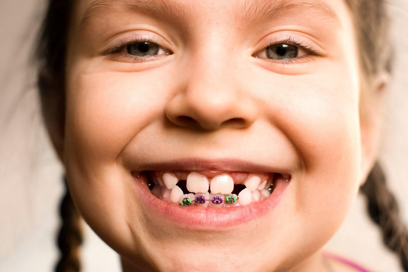 تاثیر وراثت بر بی نظمی دندانی