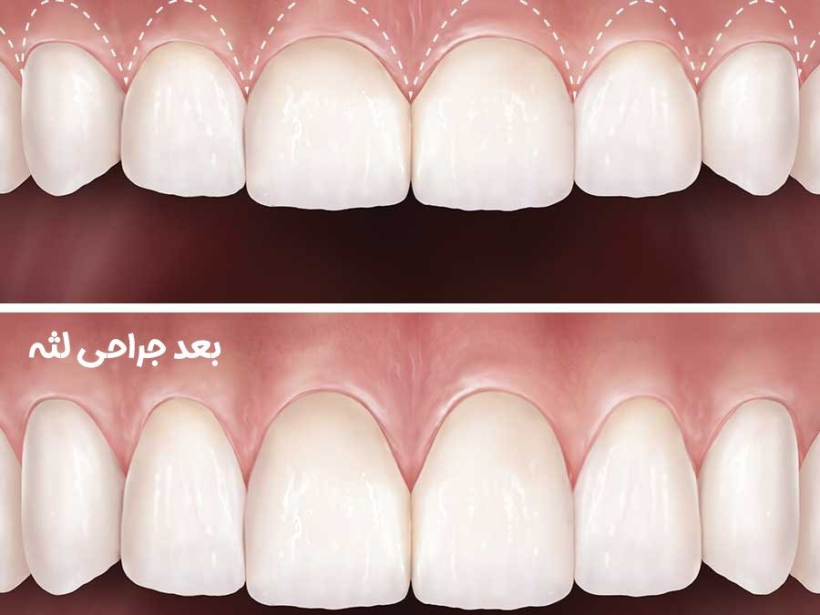 12 900x675 - جراحی برای کمتر کردن نمایش لثه ها به خاطر لبخند لثه ای