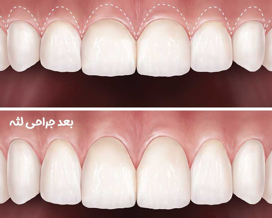 12 900x720 - جراحی برای کمتر کردن نمایش لثه ها به خاطر لبخند لثه ای