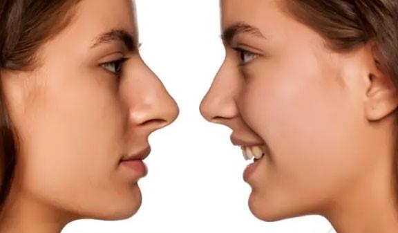 15 - اولویت با درمان ارتودنسی است یا انجام جراحی زیبایی بینی؟
