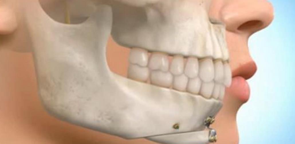 جراحی لثه برای درمان گامی اسمایل